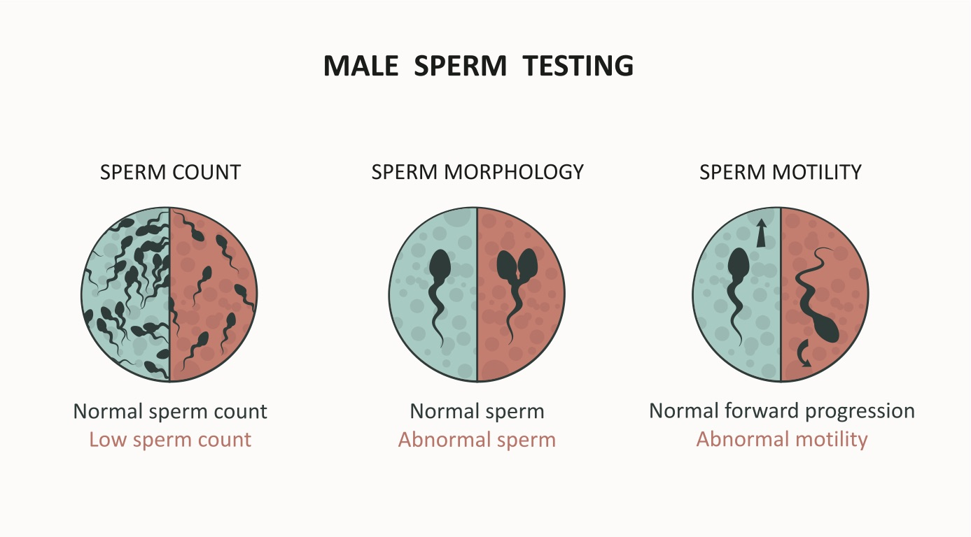 sperm analysis